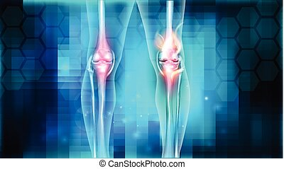 Knee joint problems - Joint problems bright abstract design,...