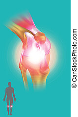 Knee Joint symptom