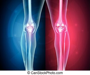 Normal leg knee joint at the blue background and unhealthy joint at the red background