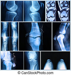 Knee medical exam: X-ray and MRI scan