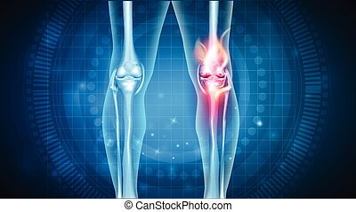 Knee pain abstract design