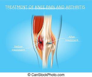 Knee Pain and Arthritis Treatment Vector Chart