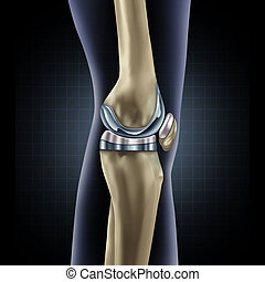 Knee Replacement - Knee replacement implant medical concept...