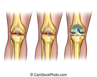 Knee replacement - Healthy knee anatomy, degenerative...