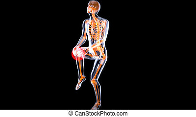 Knee sprain or ache leading to pain 3D illustration