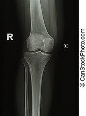 knie, beeld, röntgenstralen, joint