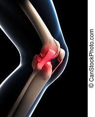 kolano, bolesny