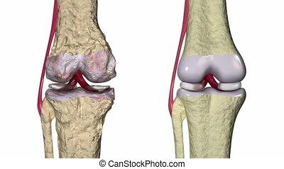 kolano, osteoarthritis, :