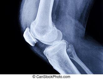 kolano, zbiór, rentgenowski, normalny