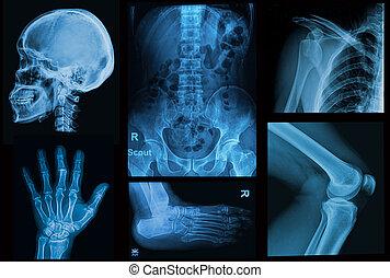kollázs, röntgensugarak, kép, közül, emberi, hulla rész, közül, emberi