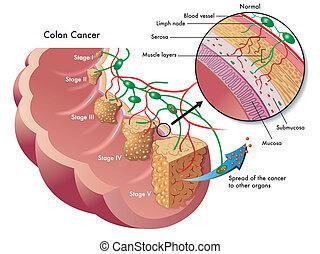kolon kræft