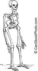 kolonn, skelett, deformerat, årgång, ryggrads, rickets, deflected, engraving.