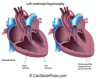 komorowy, hipertrofia, eps8, lewa strona