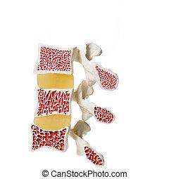 konstgjort, modell, av, osteoporosis