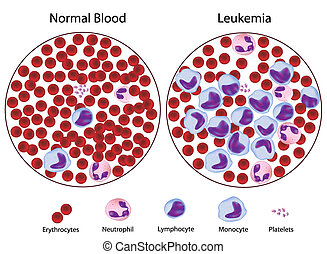 kontra, leukemic, blod, normal