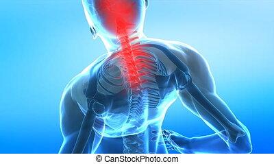 kręgosłup, ból, ludzki