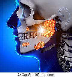 krankheit, parotid, -, /, drüse, mumps