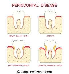 krankheit, periodontal, zahn