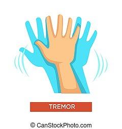kropp, neurologiska, hand, del, mänsklig, skälvning, oordning