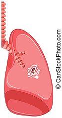 kropp, tuberkulos, mänsklig