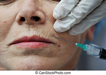 kvinde, hud, senior omsorg, fik, injektion