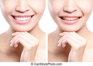 kvinde, tænder, indenfor og efter, whitening
