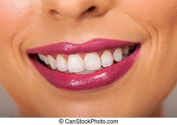 kvinde, tænder