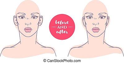kvinna, efter, kosmetisk, defects., stående, för