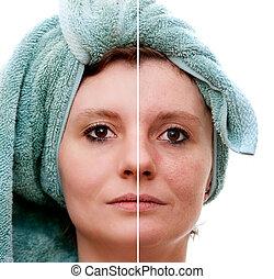 kvinna, skinn, djup, potta, fläckig