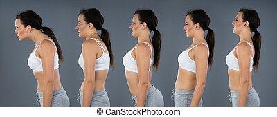 kyphosis, espalda, normal, curvatura, lordosis, mujer, vaivén
