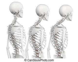 kyphotic, espina dorsal, en, 3, fases