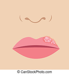 lábio, herpes