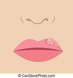lèvre, herpès