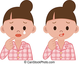 lèvres, maladie