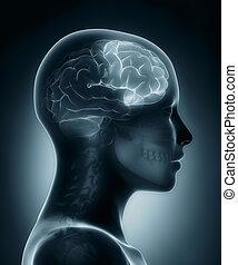 lóbulo, frontal, raio x médico, varredura
