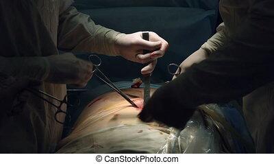 Laparoscopic surgery of the abdomen - Surgery through narrow...