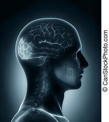 lappen, medizin, occipital, röntgenaufnahme, überfliegen