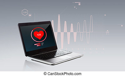 laptop computer with heart beat icon - technology, health...