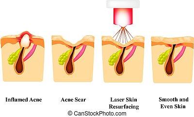 laser, akne, isolerat, antänd, treatment., bakgrund., ...