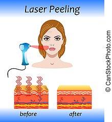 laser, après, effet, peler, vecteur, illustration, avant