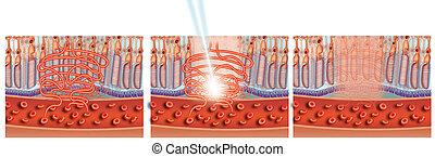 laser, behandlung, von, fleck
