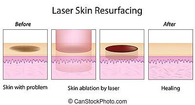 laser, resurfacing, eps10, skóra