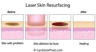 Laser Skin Resurfacing, eps10