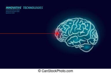 Laser surgeon brain treatment low poly 3D render. Drug...