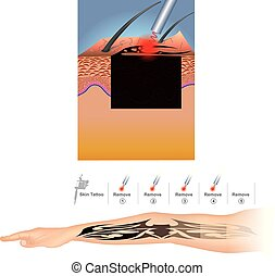 Laser Tattoo Removal - Tattoo removal is most commonly...