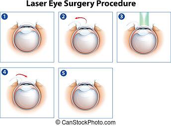 laserowa operacja, oko, postępowanie