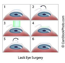 lasik chirurgie, verfahren, auge, eps10