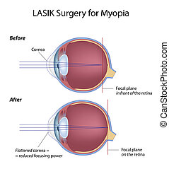 Lasik eye surgery for myopia, eps8 - laser assisted in situ...