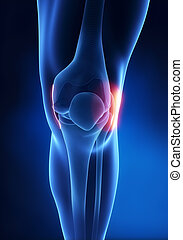 Lateral Collateral Ligament knee injury