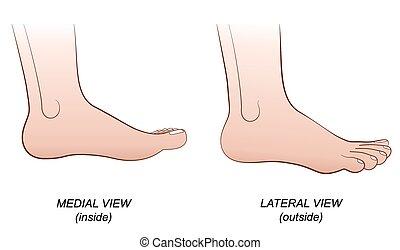 lateral, medial, fot, synhåll, insida ut